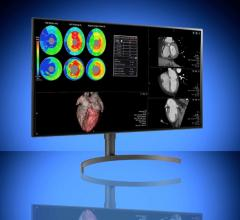 Double Black Imaging (DBI) announced the immediate availability of two radiology-focused medical-grade displays from LG Electronics bundled with DBI's comprehensive calibration software package.