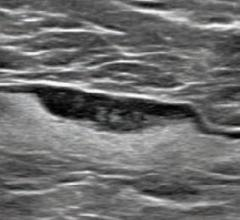 55-year-old woman who underwent screening mammogram and ultrasound 7 days after first COVID-19 vaccination dose. Screening mammogram and US demonstrated unilateral left axillary lymph node with cortical thickness of 5 mm on ultrasound (not shown). BI-RADS category 0 was assigned. Ultrasound from diagnostic work-up performed 7 days later showed no change in lymph node size. BI-RADS 3 was assigned. #COVIDvaccine #COVID19