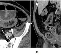 Axial (A) and coronal (B) CT of the abdomen and pelvis with IV contrast in a 57-year-old man with a high clinical suspicion for bowel ischemia. There was generalized small bowel distension and segmental thickening (arrows), with adjacent mesenteric congestion (thin arrow in B), and a small volume of ascites (* in B). Findings are nonspecific but suggestive of early ischemia or infection.