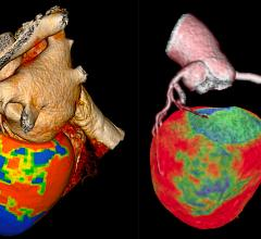 Two examples of CT myocardial perfusion (CTP) imaging assessment software. Canon is on the left and GE Healthcare is on the right. Both of these technologies have been around for a few years, but there have been an increasing amount of clinical data from studies showing the accuracy of the technology compared to nuclear imaging, the current stand of care for myocardial perfusion imaging, and cardiac MRI. #SCCT #perfusionimaging
