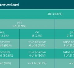 Results of the vertebrae-based analysis (383 vertebrae in 34 patients) for detection of BME.