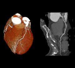 CTA, CT angiography, predict heart attacks, Radiology study