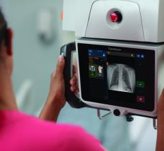 As the industry's first mobile X-ray system with a collapsible column, the DRX-Revolution delivers high-quality diagnostic images in tight spaces, helping to limit the spread of infection by providing critical bedside imaging.