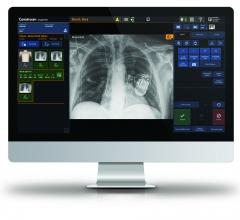 Carestream's Eclipse Image Processing engine, which powers Carestream software such as ImageView, aims to deliver quantifiable benefits to the radiologist and patient.