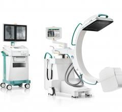 In #partnership with #Ziehm Imaging, #Carestream Health announced the addition of a #mobileCarm into its growing innovative product portfolio. Known as the Ziehm Vision RFD C-arm, this surgical imaging system will further enhance Carestream's mobile and fluoroscopic product offerings to benefit even more #healthcare providers