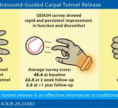 Ultrasound-guided carpal tunnel release quickly improves hand function and reduces hand discomfort, making the procedure a safe, effective, and less invasive alternative to traditional open or endoscopic surgery