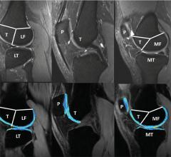 New recommendations will help provide more reliable, reproducible results for MRI-based measurements of cartilage degeneration in the knee, helping to slow down disease and prevent progression to irreversible osteoarthritis, according to a special report published in the journal Radiology