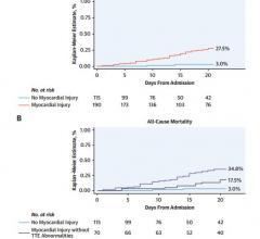 Kaplan-Meier curves for all-cause mortality in patients with versus without myocardial injury (Panel A) and in patients with versus without myocardial injury according to the presence or absence of major echocardiographic abnormalities (Panel B). *Includes wall motion abnormalities, global left ventricular dysfunction, diastolic dysfunction, right ventricular dysfunction and presence of pericardial effusion. Event rates are censored at 20 days from hospital admission. Images courtesy of Mount Sinai Health S