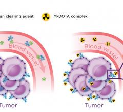 pretargeted radioimmunotherapy, PIRT, colorectal cancer, radionuclide agents, SNMMI 2016, Sarah Cheal