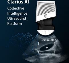 Clarius Mobile Health Announces Clarius AI Collective Intelligence Ultrasound Platform