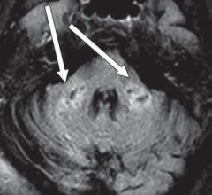 Axial FLAIR MR image shows T2 prolongation in bilateral middle cerebellar peduncles (arrows). Findings were associated with restricted diffusion and areas of T1 hypointense signal without enhancement or abnormal susceptibility. Image courtesy of American Roentgen Ray Society (ARRS), American Journal of Roentgenology (AJR)