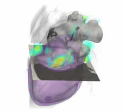 Rensselaer algorithm can identify risk of cardiovascular disease using lung cancer scan #CT