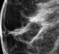 Mayo Clinic, molecular breast imaging, MBI, secondary screening, breast cancer, study, cost-effective