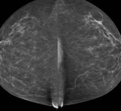 breast density, infertility treatments, breast cancer risk, Karolinska Institutet