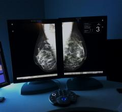 Survey Shows Dense Breast Reporting Laws Increase Breast Density Awareness