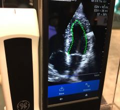 An example of DiA'a automated ejection fraction AI software on the GE vScan POCUS system at RSNA 2019.