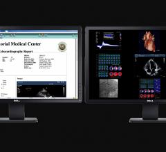 Intelerad Acquires Digisonics CVIS and OB?GYN reporting systems to Expand its Enterprise Imaging Workflow