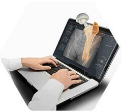 First Cases Conducted Utilizing hipEOS 3.0 and Intellijoint HIP Smart Navigation System