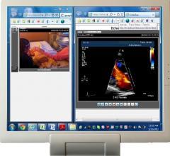 StatVideo EchoCart Telecardiology Telemedicine Cardiac Ultrasound Systems
