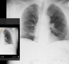 Emergent Connect pneumothorax image
