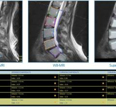 Esaote Launches Q-Spine Analysis Software