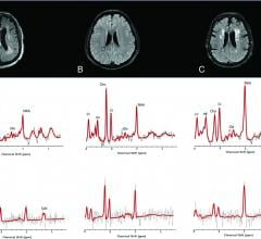 1H-MR spectra of 3 consecutive patients with COVID-19. Upper row: Axial FLAIR images at the corona radiata level show representative MRS voxels (black squares) from sampled periventricular regions. Lower row: Corresponding spectrum (black) and LCModel fit (red) from each patient acquired at TE = 30 ms (upper row) and TE = 288 ms (lower row). A, A patient with COVID-19-associated multifocal necrotizing leukoencephalopathy shows diffuse patchy WM lesions with markedly increased Cho and decreased NAA, as well
