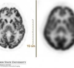 A 90-second brain acquisition with FDG radiotracer — comparison of digital (Vereos, left, 1 mm) and conventional (Gemini TF, 4 mm) images.