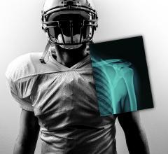 Carestream, 2016 NFL Combine, DRX Plus 3543 detector, cone beam CT