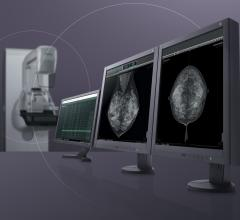 FDA Approves New Tomosynthesis Quality Control Tests for ACR Digital Mammography QC Manual