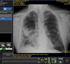 #RSNA19 A sophisticated type of artificial intelligence (AI) can detect clinically meaningful chest X-ray findings as effectively as experienced radiologists, according to a study published in the journal Radiology.