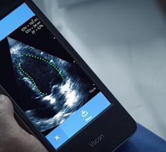 GE Healthcare Vscan with artificial intelligence (AI) automated left ventricular ejection fraction assessment with the Dia LVivo EF app. #ASE2020 #AI
