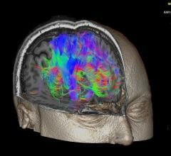 Machine Learning Uncovers New Insights Into Human Brain Through fMRI