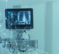 The medical imaging market size has the potential to grow by $17.64 billion during 2020-2024, and the market's growth momentum will decelerate during the forecast period.