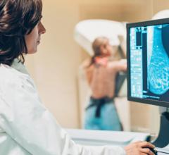 Simulation finds starting at age 30 with MRI and mammography to be the preferred strategy; starting at 25 prevented marginally more deaths, but with more testing and emotional stress