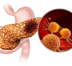 The studyinvestigates targeted drug delivery by focused ultrasound for pancreatic cancer