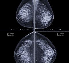 The Breast Imaging and Reporting System (BI-RADS) was established by the American College of Radiology to help classify findings on mammography. Findings are classified based on the risk of breast cancer, with a BI-RADS 2 lesion being benign, or not cancerous, and BI-RADS 6 representing a lesion that is biopsy-proven to be malignant.