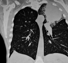 Swiftness is essential when treating lung cancer, the second most common type of cancer in the U.S. and the country's leading cause of cancer deaths.