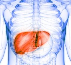 Primary liver cancer is on the rise worldwide, largely due to an increase in hepatitis C infections and chronic liver disease