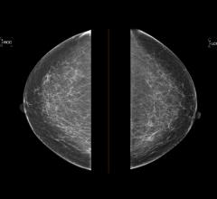 The American College of Radiology (ACR), Society of Breast Imaging (SBI), patient advocates and others secured an extension of the moratorium on harmful 2009 and 2016 United States Preventive Services Task Force (USPSTF) Breast Cancer Screening Guidelines from Dec. 31, 2021 to Dec. 31, 2022.
