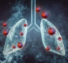 Nearly one quarter of deaths from lung cancer could be avoided in high-risk populations through the adoption of targeted screening with low-dose computed tomography (LDCT) scans, as based on the results of the NELSON study.