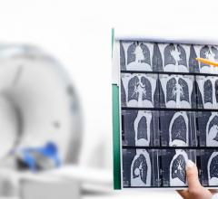 Volpara Health, aglobal health technology software leader providing an integrated platform for the delivery of personalizedbreast and lung care, further expanded its footprint in the US lung screening market with a strategic relationship withSeattle-based lung AI company RevealDx.