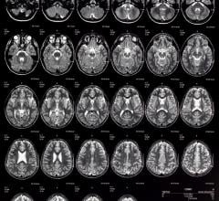 pediatric MRI brain imaging in children