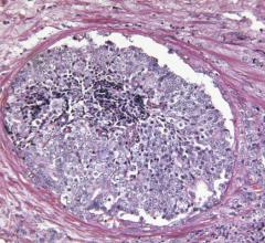 Scientists have identified two subtypes of metastatic prostate cancer that respond differently to treatment, information that could one day guide physicians in treating patients with the therapies best suited to their disease.