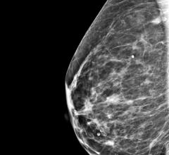 A targeted intervention providing mammograms to hospitalized Medicaid patients can help patients complete overdue breast cancer screening