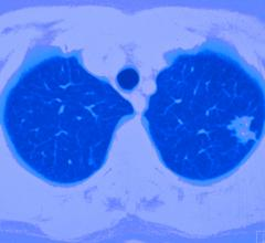 SIR considers image-guided thermal ablation to be an acceptable treatment option for patients with inoperable Stage I NSCLC, those with recurrent NSCLC, as well as patients with metastatic lung disease