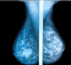 3-D mammography reduces the number of breast cancer cases diagnosed in the period between routine screenings, when compared with traditional mammography, according to a large study from Lund University in Sweden. The results are published in the journal Radiology.