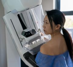 Attending the two most recent screening appointments before a breast cancer diagnosis protects against breast cancer death, according to a Queen Mary University of London study of over half a million Swedish women conducted over 24 years