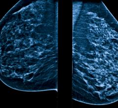The researchers say there is currently a lack of good quality evidence to support a policy of replacing human radiologists with artificial intelligence (AI) technology when screening for breast cancer.