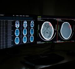 Qure.ai, a leading healthcare AI startup
