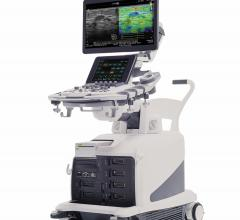 Hitachi Highlights Arietta 850 Premium Ultrasound System at RSNA 2017